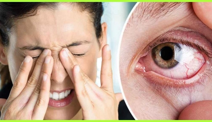 Dry Eyelids How to Get Rid of Itchy and Inflamed Eyelids